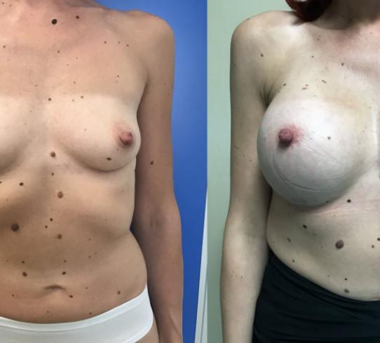 Antes y después aumento de pechos